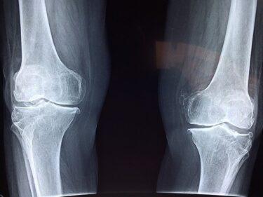 「骨折の種類や症状」について徹底解説!正しい知識で早く治す